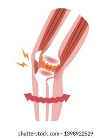 Knee joint pain (gonarthrosis / osteoarthritis / arthrosis of knee ) . flat illustration (no text)