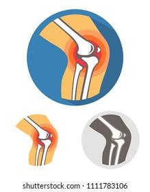 Knee joint pain vector illustration.