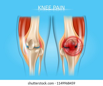 Knee Pain Realistic Vector Medical Scheme with Healthy and Inflamed or Damaged Human Knee Joints Anatomical Illustrations. Human Musculoskeletal System Painful Diseases, Joints Injuries Concept