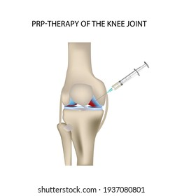 Knee PRP therapy, vector medical illustration