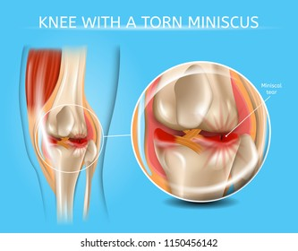 Knee with Torn Meniscus Realistic Vector Medical Scheme with Damaged Knee Joint and Magnified Painful Meniscus Tear Anatomical Illustration. Musculoskeletal System and Joints Injuries, Meniscus Trauma