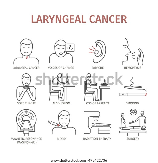 Laryngeal Cancer Symptoms Causes Treatment Line Stock Vector