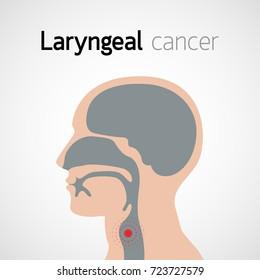 Laryngeal Cancer vector icon design illustration