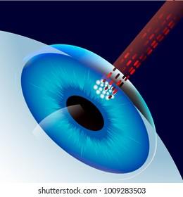Laser Eye Correction  vector illustration icon symbol