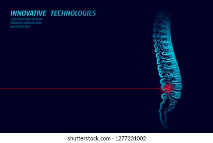 Laser physiotherapy human spine injury. Pain area surgery operation modern loin medicine technology low poly triangles 3D render female back hernia vector illustration