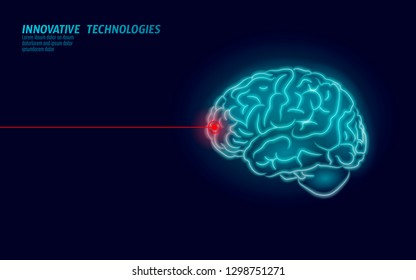 Laser surgeon brain treatment low poly 3D render. Drug nootropic human ability smart mental health. Medicine cognitive rehabilitation in Alzheimer disease and dementia vector illustration