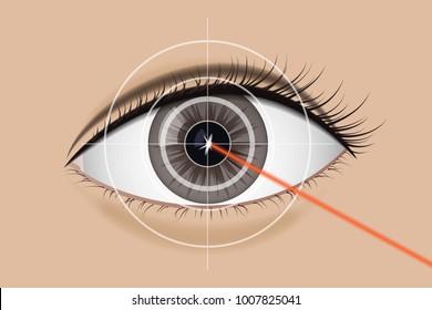 Of laser vision correction. Medicine vector illustration. Brown eyes person. Surgery eyesight.