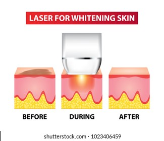 Laser for whitening skin before and after vector illustration