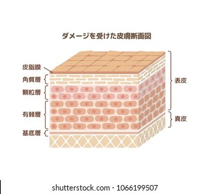 Layer of damaged skin illustration (japanese). translation:epidermis,dermis,sebum, stratum corneum,glanular cell layer,spinous layer,basal layer.