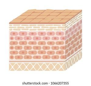 Layer of damaged skin illustration (no text)
