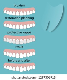 Layout attrition Bruxism teeth illustration vector. Erased teeth. Restoration of teeth. Protective kappa. Dental concept