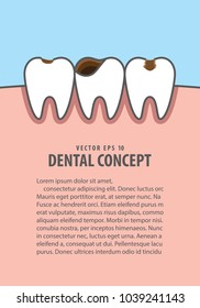 Layout Caries and cavity teeth illustration vector on blue background. Dental concept.