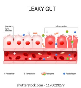 leaky gut. cells on gut lining held tightly together. in intestine with celiac disease and gluten sensitivity these tight junctions come apart. autoimmune disorder. Vector diagram