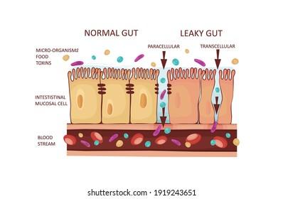 Leaky Gut Syndrome or Intestinal Permeability Diagram. Autoimmune disorder. Vector illustration