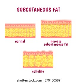 leather sectional layer of subcutaneous fat, cellulite scheme