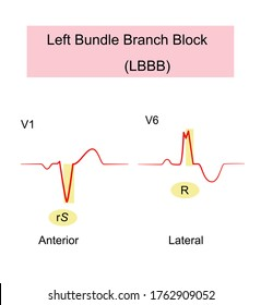 Left Bundle Branch Block (LBBB) of ECG wide QRS complexes  with abnormal  morphology in leads V1 and V6,QRS duration greater than 120 , causes the left ventricle to contract later the right ventricle