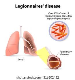 Legionnaires' disease or legionellosis, Legionella pneumophila