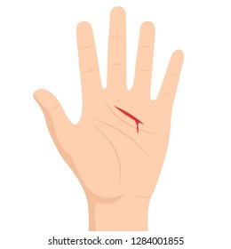 Lesion on hand vector. free space for text. wallpaper. copy space.