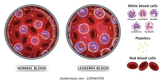 Leukemia Blood Cells And Normal Blood Cells  White Blood Cells Monocyte   Eosinophil Basophil Lymphocyte Neutrophil Medical Education Concept Vector Illustration