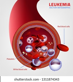 Leukemia blood vessel cut under the microscope. Medical infographic. Editable vector illustration isolated on a white background. Scientific and educaional concept. Horizontal poster.