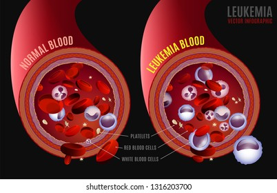 Leukemia and normal blood under the microscope in comparison. Medical infographic. Editable vector illustration isolated on a grey background. Scientific and educaional concept. Horizontal poster.