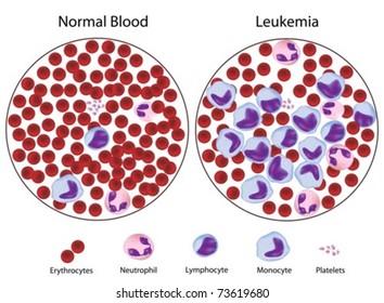 Leukemic versus normal blood, great details.