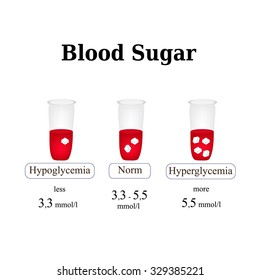 The level of sugar in the blood. Hypoglycemia. Hyperglycemia. Infographics. Vector illustration  on isolated background.