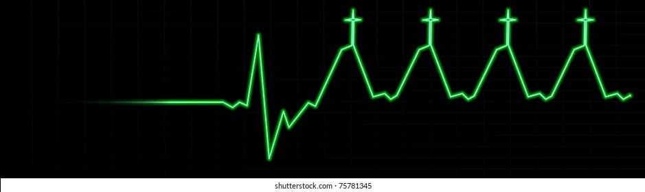 Life in Jesus EKG-- Death to Life