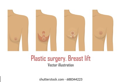Lifting breast plastic surgery. Cosmetic procedure of mastopexy, technique and method. Female healthcare concept. Medical clinic poster. White background vector illustration