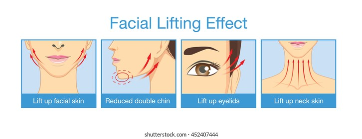 Lifting effect on facial of women when get rid face fat. Reduce double chin. Lifting eyelid and neck skin.
