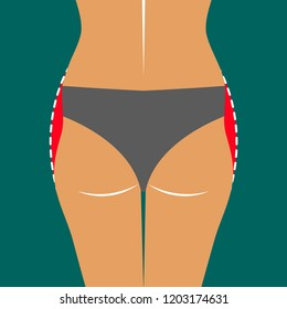 Lipofilling thighs, beautiful body line, plastic surgery, correction of shape of hips, vector illustration