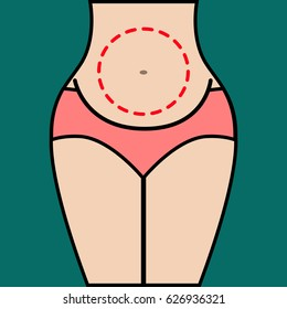 Liposuction of abdomen. Close up vector illustration of body contour with dotted line. Plastic surgery. Getting rid of excess fat.