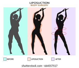 Liposuction before and after. Plastic surgery infographic of Aesthetic Procedures