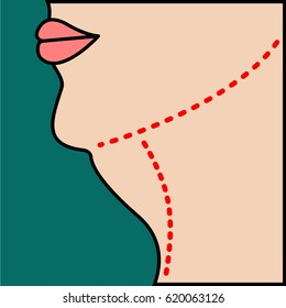Liposuction of  chin, neck, face. Close vector illustration of body contour with dotted line. Plastic surgery. Getting rid of excess fat.
