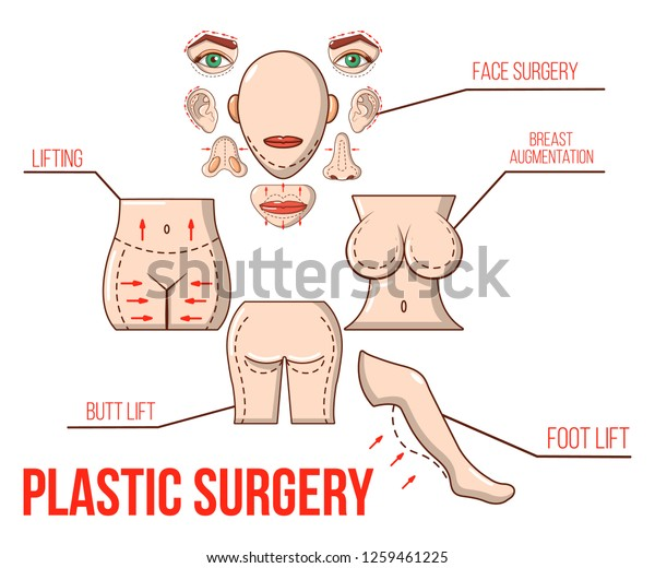 Liposuction Concept Banner Cartoon Banner Liposuction Stock Vector Royalty Free 1259461225