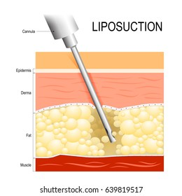 Liposuction. fat modeling. Cannula into the fat layer beneath skin.