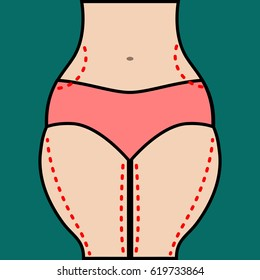 Liposuction of hips and thighs. Close vector illustration of body contour with dotted line. Plastic surgery. Getting rid of excess fat.