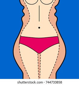 Liposuction. Liposuction hips, thighs, stomach. Removal of fat. Plastic surgery. Stock vector