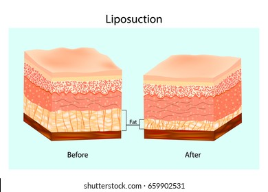Liposuction. The Human Skin layer before lipo and after Liposuction. Vector illustration