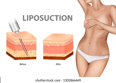 Liposuction or lipo. The Human Skin layer before lipo and after Liposuction. Plastic surgery infographic of Aesthetic Procedures