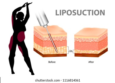 Liposuction or lipo. Vector illustration.