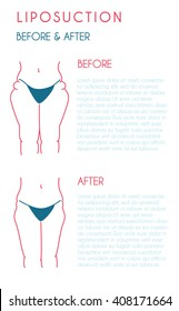 Liposuction poster. Modern vector style.