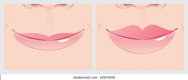 Lips correction creating beautiful smile line. Vector illustration.
