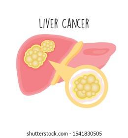 Liver Cancer flat vector illustration.