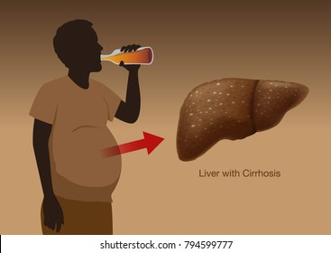 Liver with Cirrhosis of People who drink liqueur heavily over a long period of time. Illustration about health and medical.
