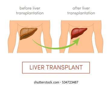 Liver transplant vector concept