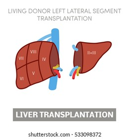 Living donor left lateral segment liver transplantation, vector