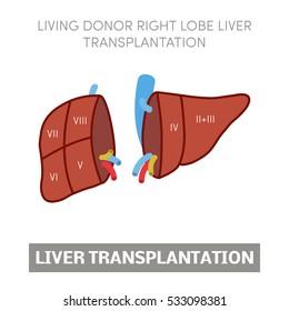Living donor right lobe liver transplantation, vector