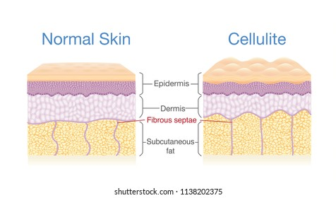 llustration for compare normal skin layer and skin with Cellulite. Illustration about medical diagram.