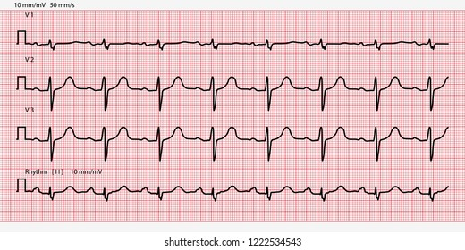 Ecg Images, Stock Photos & Vectors | Shutterstock